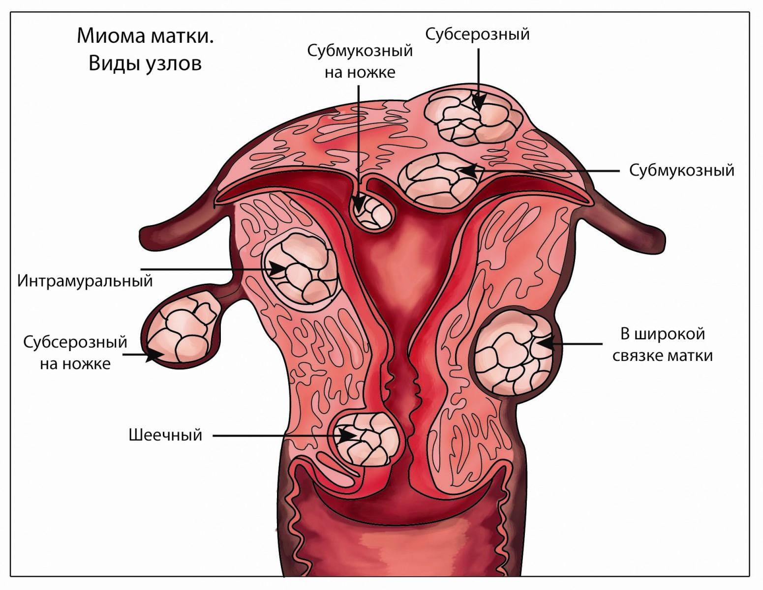 Реферат опухоли матки 3 фотография