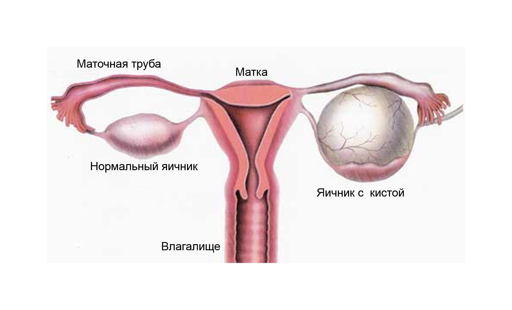 Почемупосле долго отсутствия секса болят яичники 5 фотография