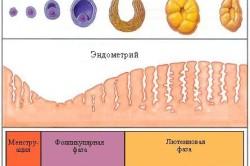 Поликистозные яичники - Консультация гинеколога