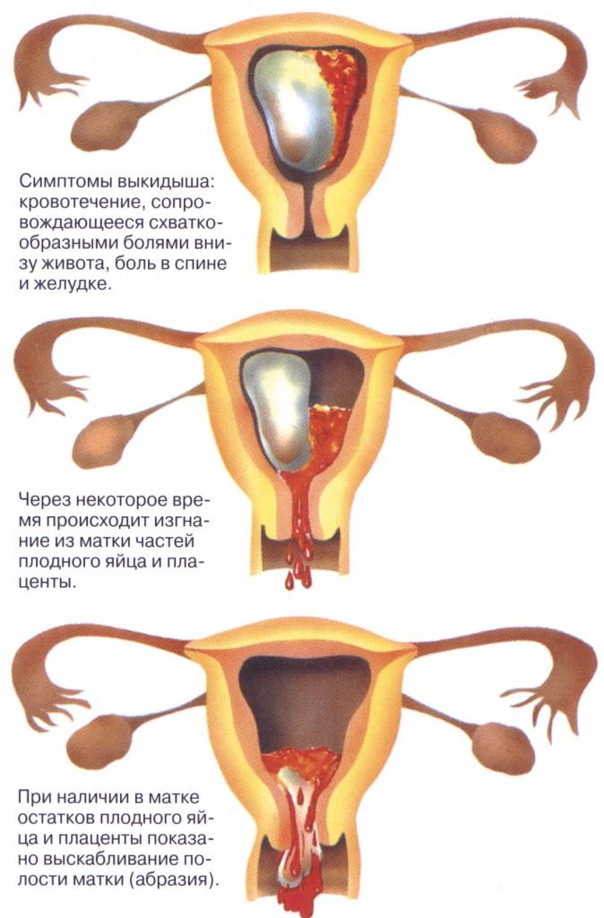 остеопатия при гинекологических болезнях