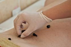 Лечение миоматозных узлов пиявками