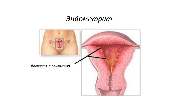Эндометрит: симптомы и лечение